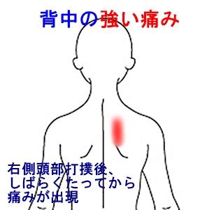 右 肩 甲骨 の 痛み