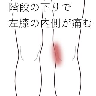 治療例12